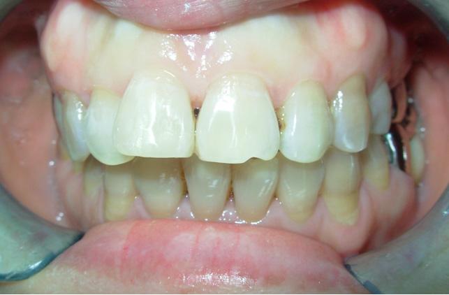 树脂修复让牙齿拥有健康的美