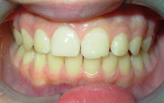 儿童牙冠折断的树脂修复(图)