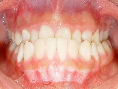 前牙反合(图)