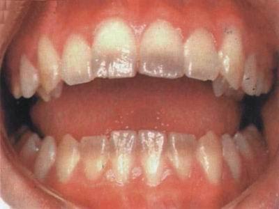 灰色四环素牙
