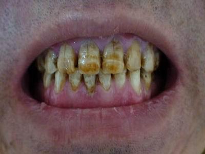 严重的棕黄色氟斑牙
