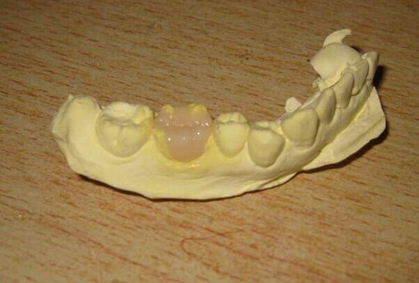 内容导读:龋齿的充填物有树脂材质也有金属材质的。树脂材质相对金属材质有强度不高,不耐磨的缺点。金属材质则可能会引起金属过敏,以及牙龈的变色等问题。而瓷嵌体则具有生理相容性好不会引起金属过敏,强度高,颜色接近自然牙的特点,是一种非常好的龋齿修复方法。  龋齿的充填物有树脂材质也有金属材质的。树脂材质相对金属材质有强度不高,不耐磨的缺点。金属材质则可能会引起金属过敏,以及牙龈的变色等问题。而瓷嵌体则具有生理相容性好不会引起金属过敏,强度高,颜色接近自然牙的特点,是一种非常好的龋齿修复方法。 什么是瓷嵌体补牙?