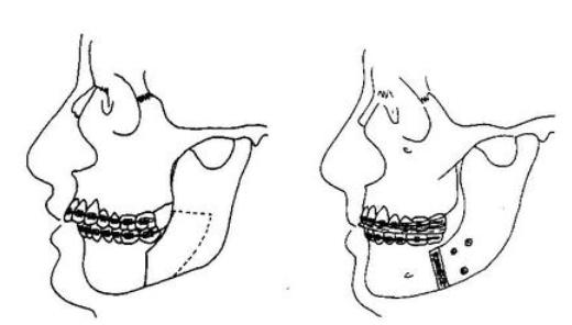 口腔颌面外科之颏部整形手术术后注意事项 1、术后颏部会有软组织肿胀,因此术后要对颏部加压包扎和冰袋冷敷,以减轻肿胀和不适。 2、颏部整形手术创口均在口内,术后需注意口腔卫生,防治创口感染。  3、术后饮食方面,需要流食或软食,尽量避免不适当的运动而使颏部骨块或者假体位置移动。避免进食辛辣刺激性食物如辣椒等。 4、口内创口缝线一般术后7天左右拆除,局部软组织的肿胀一般会持续两周左右。 5、注意术后3月内不要做一些剧烈的运动,防止面部受震动或打击,导致颏部骨块或者假体发生断裂及移位。