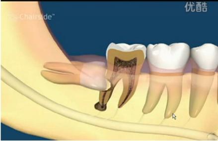 补牙镶牙,拔智齿的危害,智齿要