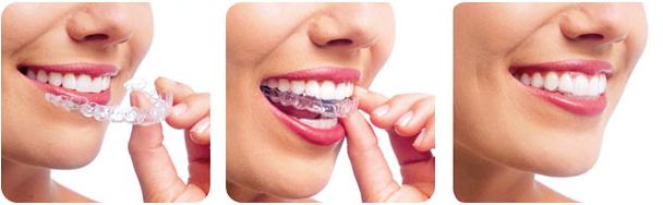 关于到澳洲留学后想去正畸牙齿,费用会很贵吗?需要办些什么手续?