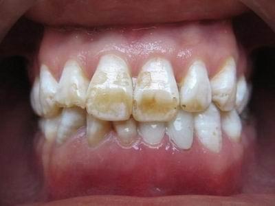 白垩色氟斑牙