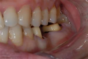 后牙烤瓷牙桥修复病例(图片展示)