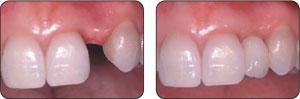 Bicon种植体单颗牙病例展示