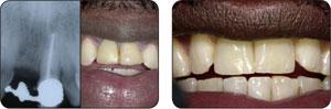 Bicon种植体多颗牙病例展示