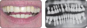 Bicon种植体全弓牙病例展示
