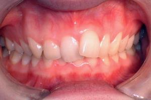 舌侧正畸,牙齿拥挤,深覆合,不拔牙矫正
