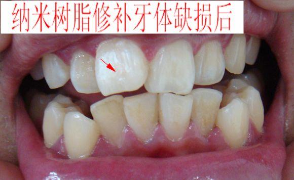 前牙外伤纳米树脂修补病例
