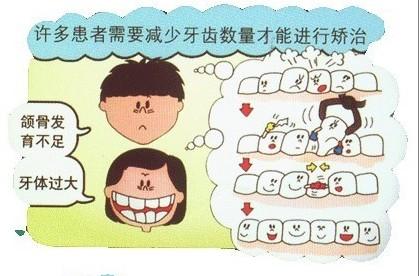 儿童牙齿矫正小知识