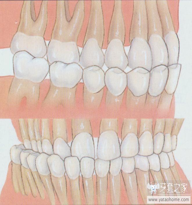 儿童牙齿反颌图片集