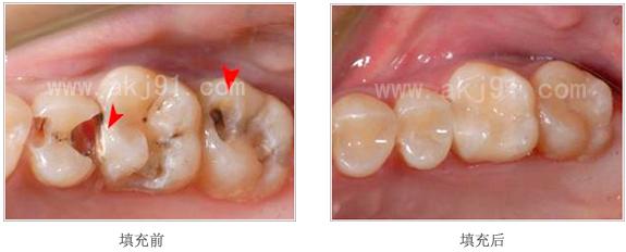 填充治疗主要适用于龋齿治疗,首先去除龋坏组织(已经蛀掉的牙齿部分),制备一定的固位形状,根据不同的形状,根据不同的情况,使用不同的材料分层填补缺损的牙体组织。 玻璃离子填充:只适用于浅龋和简单临时性的补牙。 复合树脂填充:优点是与牙齿颜色接近。缺点是在变硬的过程中收缩,只能应用于较小的蛀牙的补牙。如果蛀牙的洞很大,或者涉及到了牙齿的邻面,从长远考虑,树脂补牙就不是那么合适了。容易破损,折裂。导致再发蛀牙或者塞牙等。 美国3M纳米材料填充:  色泽逼真:恢复牙齿自然那外姓,色泽尤其逼真、有质感。  持久性佳